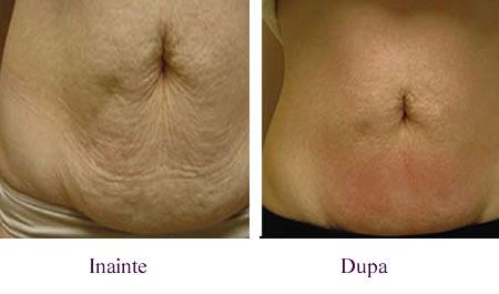Masaj anticelulitic abdomen